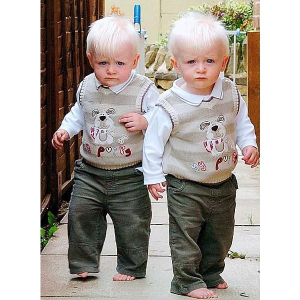 Gêmeos separados podem viver vidas assustadoramente semelhantes