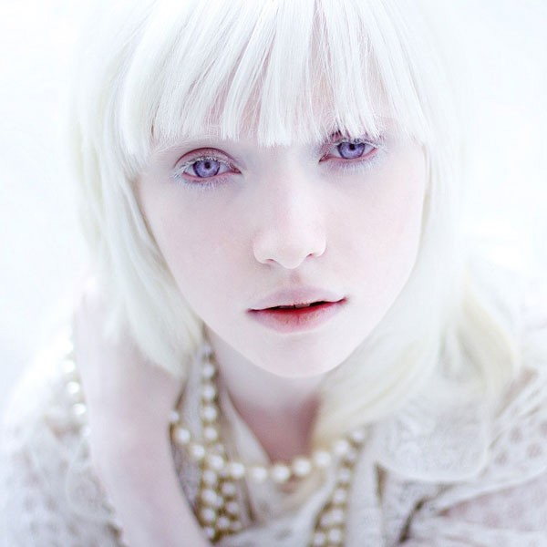 Humano albino