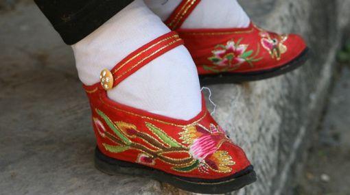 China: Os famosos pés de boneca