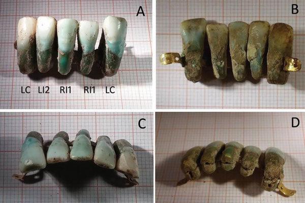 Próteses dentárias muito medievais